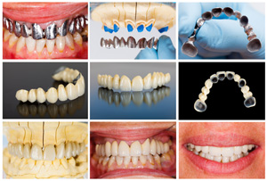 Services-Pros-Occlusal-Body