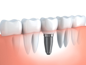 Services-Restore-Implants