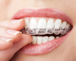 Services-Smile-Invisalign
